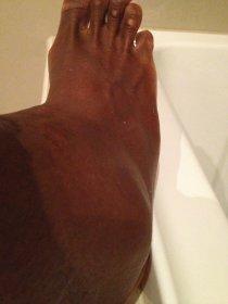 La caviglia di Serena Williams
